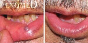 jeziorko żylne przed i po leczeniu laserowym