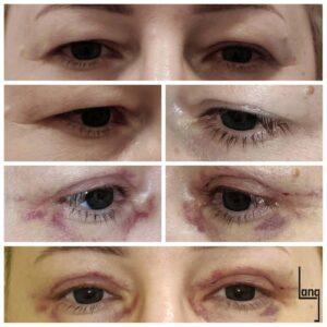 Opadanie powiek górnych. Stan przed i po zabiegu plastyki powiek (blefaroplastyki)..