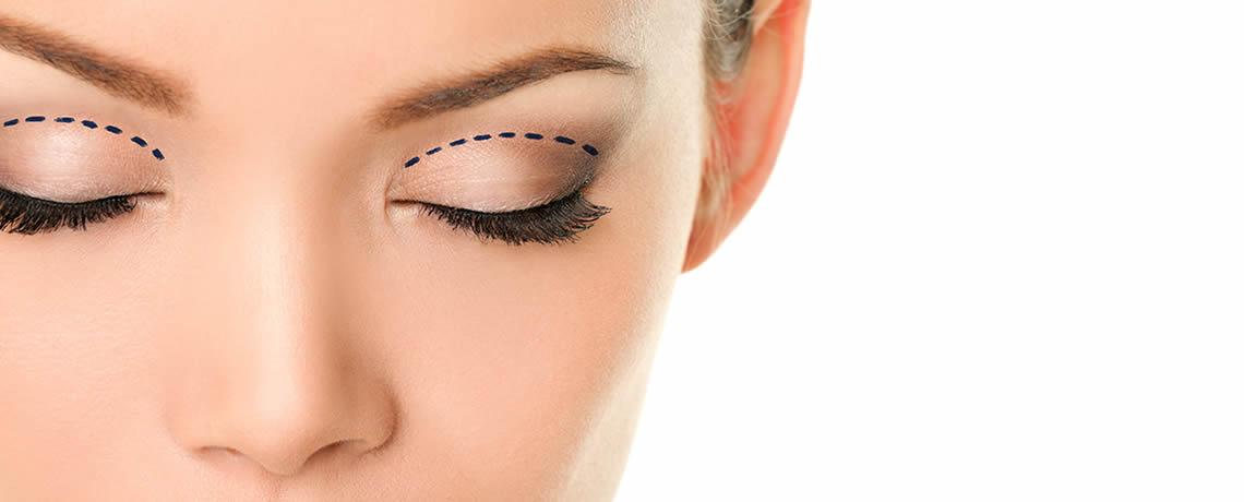 Twarz młodej kobiety z zamkniętymi oczami. Zaznaczone linie cięcia przed zabiegiem plastyki powiek górnych (blefaroplastyki)