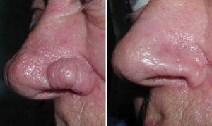Umiarkowany przerost nosa (rhinophyma) - stan przed i po zabiegu