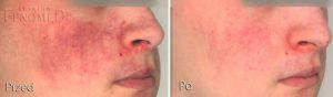 naczyniak płaski (plama czerwonego wina) przed i po leczeniu laserowym