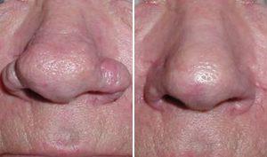 Niewielki przerost nosa (rhinophyma) - stan przed i po zabiegu.
